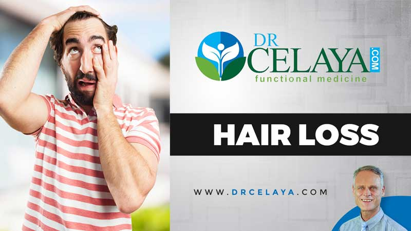 What can you do about your hair loss?