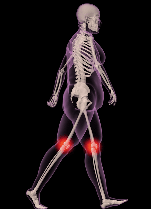 Target gut microbiome for osteoarthritis and joint pain