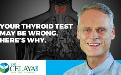 Your thyroid test may be wrong. Here's why.