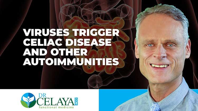 Viruses trigger celiac disease and other autoimmunities