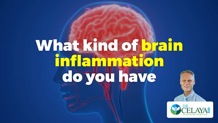 What kind of brain inflammation do you have?