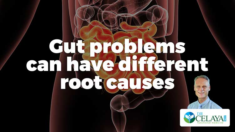 Gut problems can have different root causes