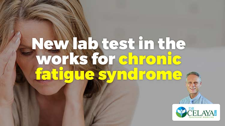 New lab test in the works for chronic fatigue syndrome