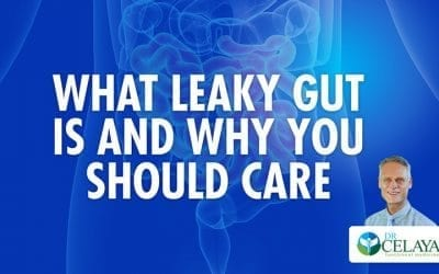 What leaky gut is and why you should care